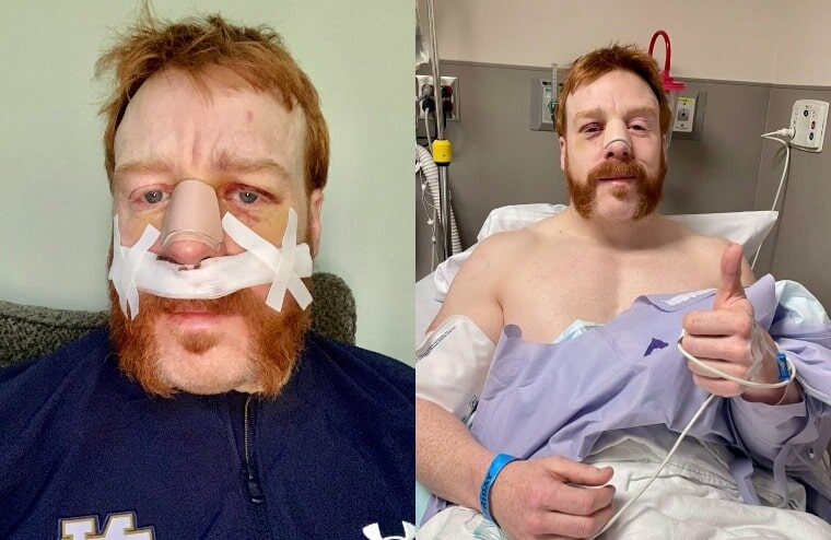 United States Champion Sheamus Recovering From Surgery